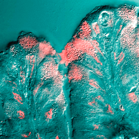 Mucus cells, from PLoS Biology. Used under Creative Commons license.