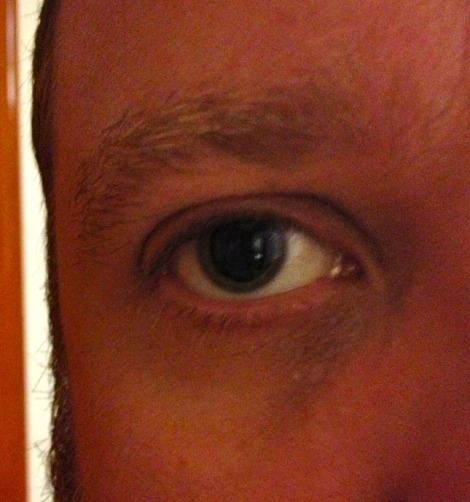 There, that's my dilated eye. Are you happy now?