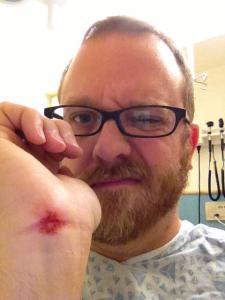 Road rash on my wrist. The big ones were on my knee.