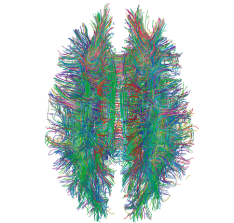 White Matter Connections Obtained with MRI Tractography by Xavier Gigandet et. al. on Wikimedia Commons. Used under Creative Commons license. http://en.wikipedia.org/wiki/File:White_Matter_Connections_Obtained_with_MRI_Tractography.png
