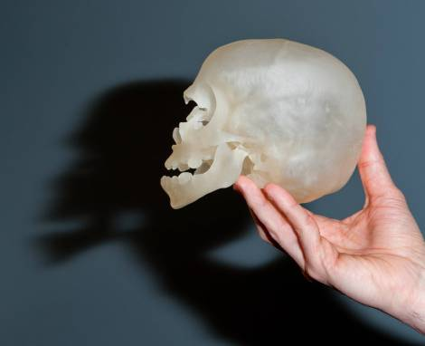 A 3D printed model of a patient's skull. (KC Cohen/Boston Children's Hospital)